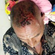 PNS Kodim Fakfak Dibacok, Polisi Tangkap Pelaku
